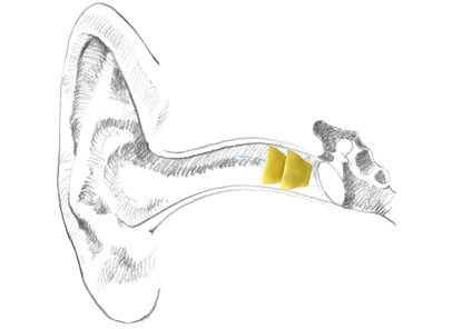 lyric hearing aid in the ear canal